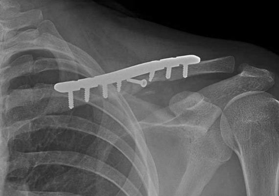 clavicular-fracture2
